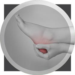 Extreme Heel Pain