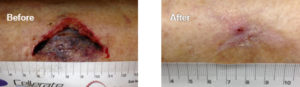 Before After Wound Care
