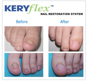 Keryflex Long Island Nail Restoration