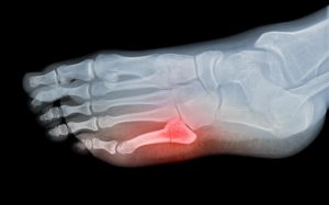 X-ray of Stress Fracture