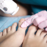 laser-treatment-toe-fungus-infection