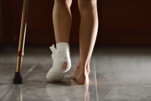 home-bunion-surgery-recovery-tips