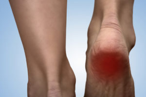 heel-pain-plantar-fasciitis